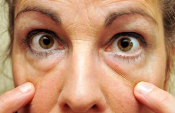 11 Ways to Banish the Bags Under Your Eyes