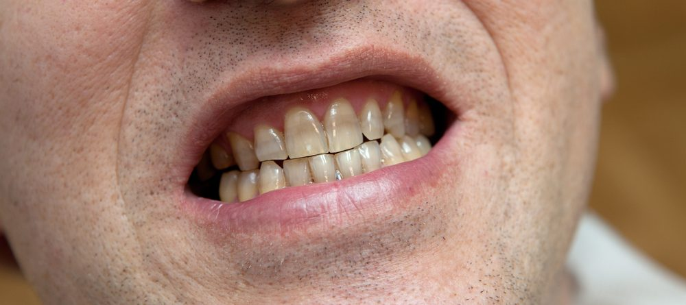 8 Simple Ways to Naturally Whiten Your Teeth